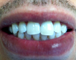 Chris after whitening