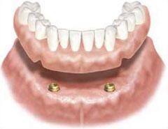 dental implants: implant over denture