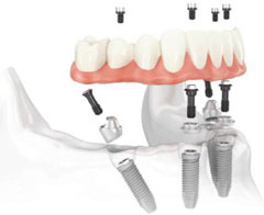 dental implants: all-on-4 implant fixed bridge