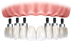 dental implants: traditional 6-8 implant support fixed bridge