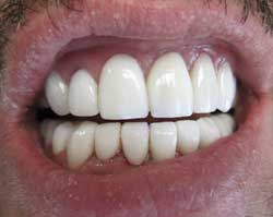 M. G. after porcelain veneers