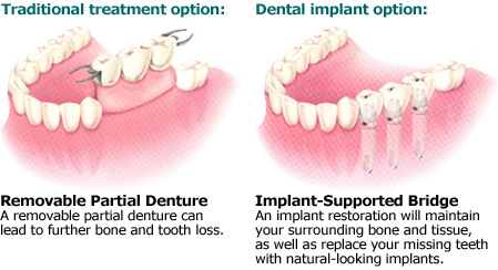 Picture showing a comparasion between partial dentures and dental implants