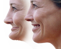 Picture showing a patient before and after dental implants