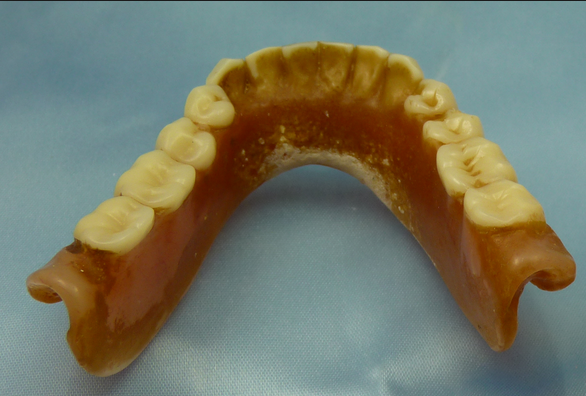 Picture showing a denture stained and with deposits of calculus.