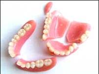 Picture showing broken dentures