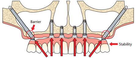 "Diagram showing the Zygoma Dental Implants added for posterior support in a patient with ""egg shell bone"""