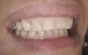 RC After Dental Crowns and Bridges
