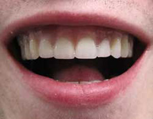 AN After Dental Implants