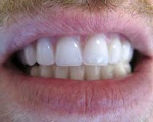 CE After Teeth-in-a-Day Dental Implants