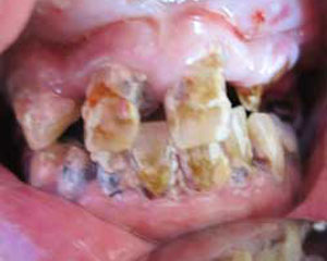 CE Before Teeth-in-a-Day Dental Implants