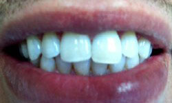 Chris After Porcelain Inlay and Porcelain Veneers & Lumineers