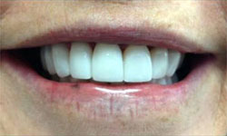 CM After Porcelain Inlay and Porcelain Veneers & Lumineers