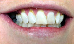 CM Before Porcelain Inlay and Porcelain Veneers & Lumineers