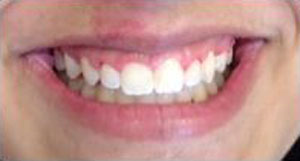 DB After Dental Braces