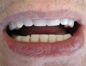 EG After Dental Implants