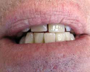 RD After Dental Implants