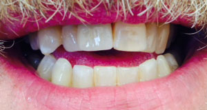 KH After Dental Implants