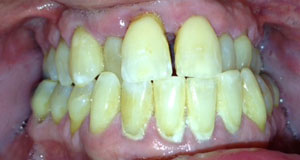 KH Before Dental Implants