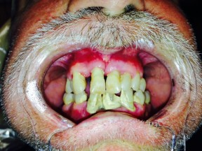 MG Before Teeth-in-a-Day Dental Implants