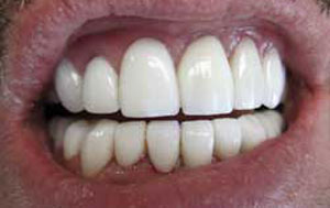 MG After Dental Crowns and Bridges