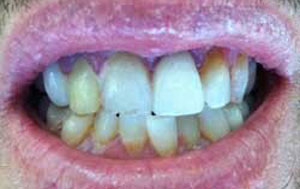 MG Before Dental Crowns and Bridges