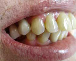 MG After Dental Implants