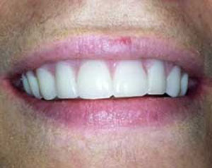 MP After Dental Implants