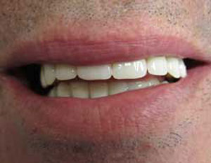 RC After Dental Implants