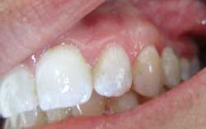 RP After Dental Implants