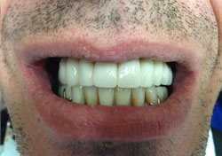 JU After Teeth-in-a-Day Dental Implants