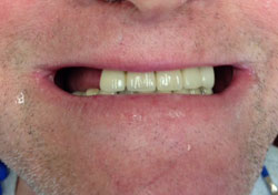 ER Before Teeth-in-a-Day Dental Implants