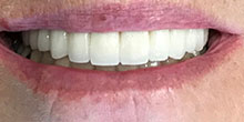 dental-implants-40