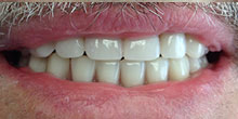 dental-implants-29