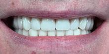 dental-implants-25