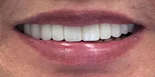 dental-implants-27