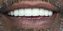dental-implants-26