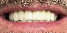 dental-implants-22