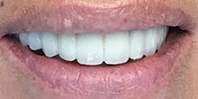 dental-implants-21