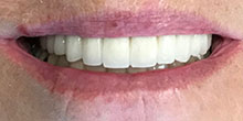 dental-implants-20