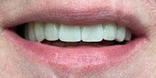 dental-implants-19