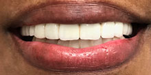 dental-implants-18