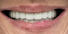 dental-implants-16