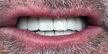 dental-implants-17