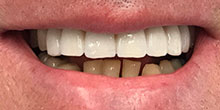dental-implants-15