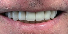 dental-implants-14