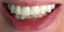 dental-implants-11