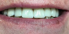 dental-implants-9