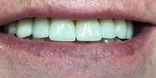 dental-implants-9