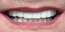 dental-implants-8