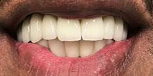 dental-implants-7